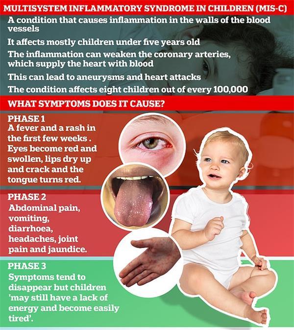 最新研究证实:欧美儿童感染新冠后出现MIS-C炎症6